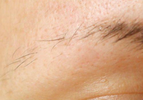 лечение выпадения бровей