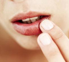 причины трещин в уголках губ