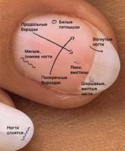 диагностика по состоянию ногтей