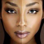 Как бороться с гиперпигментацией кожи