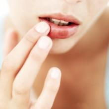 малярия на губах лечение