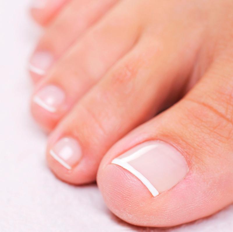 Утолщение ногтей на ногах: профилактика и лечение