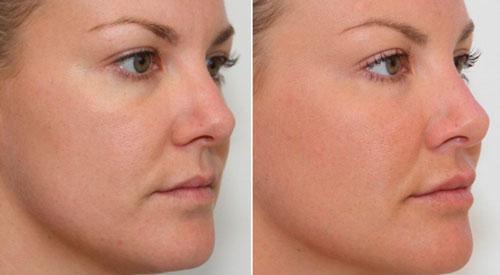 малярные мешки под глазами, фото до и после