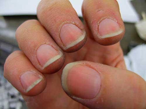 трескается кожа вокруг ногтей, почему