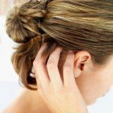 Как лечить сухую себорею кожи головы в домашних условиях