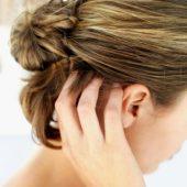 как лечить сухую себорею на голове