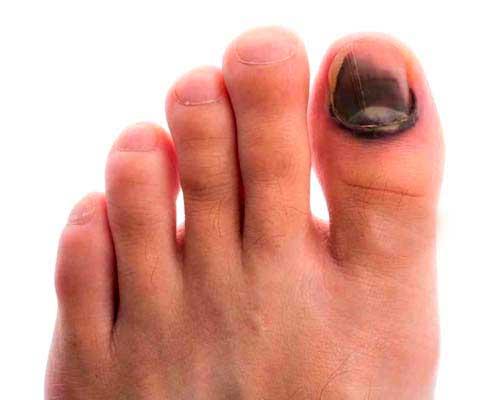 Синяки на ногтях больших пальцев ног как лечить