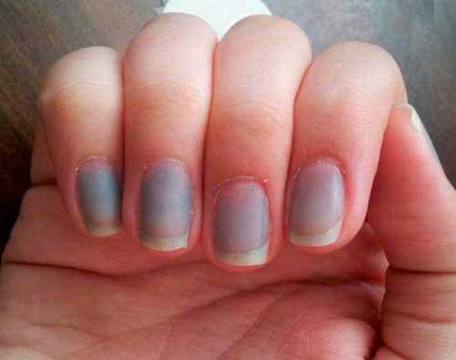 причины посинения ногтей
