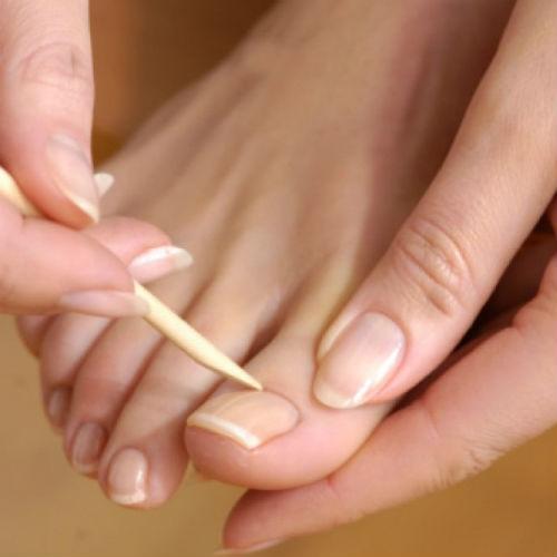 ногти на ногах стали толстыми и твердыми