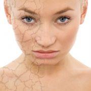 Какой требуется уход за обезвоженной кожей лица