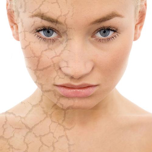 обезвоженная кожа лица что делать