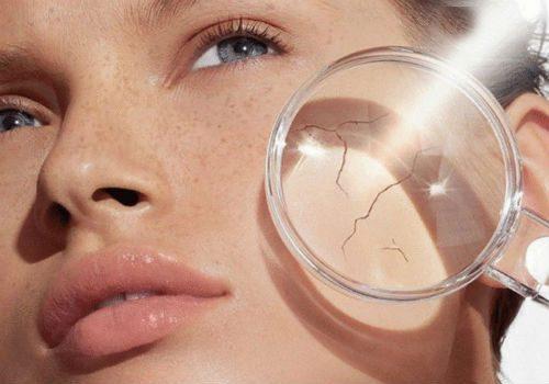 причины обезвоживания кожи