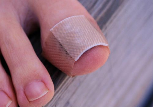 профилактика отхождения ногтей