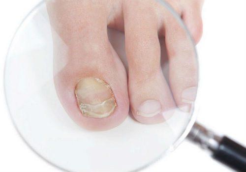 Ногти на ногах отходят от кожи