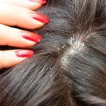 Лечение себореи волосистой части головы