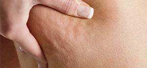 Целлюлит на ногах: причины и как избавиться в домашних условиях