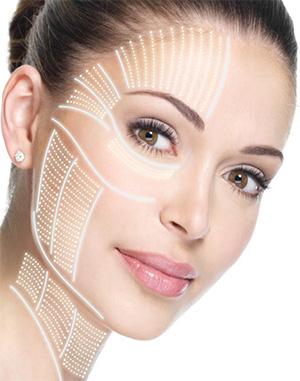 SMAS-лифтинг - ультразвуковая подтяжка лица