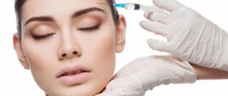 Инъекции гиалуроновой кислоты для лица