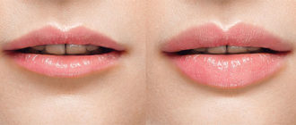 Как увеличить губы гиалуроновой кислотой