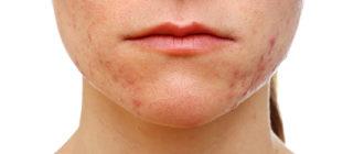 Акне, или угревая сыпь: причины и лечение