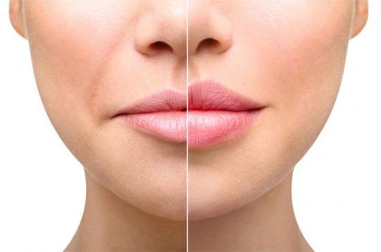 Хейлопластика губ: особенности, эффект до и после, отзывы