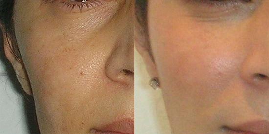 Липофилинг лица, груди, живота, ягодиц: особенности, эффект до и после, отзывы