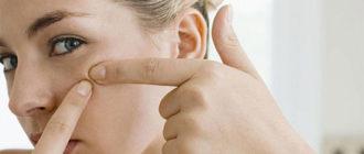 Как устранить закрытые комедоны на лице