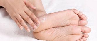 Мазь от потливости ног - какую лучше выбрать