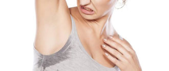 Гипергидроз подмышек — причины и лечение