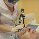 Лечение угревой сыпи лазером
