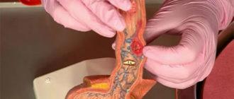 Плоскоклеточная папиллома пищевода