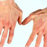 Красные пятна на руках: причины и что делать