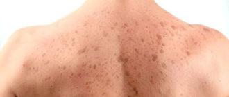 Пигментные пятна на спине: причины и лечение