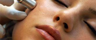 Алмазная микродермабразия лица