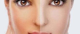 Как осветлить кожу лица после загара