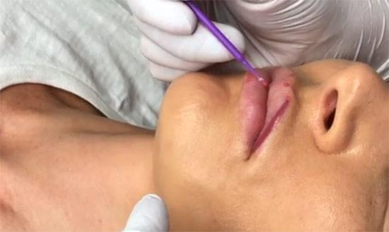 Микроблейдинг губ: как выполняется, кому подойдет, особенности